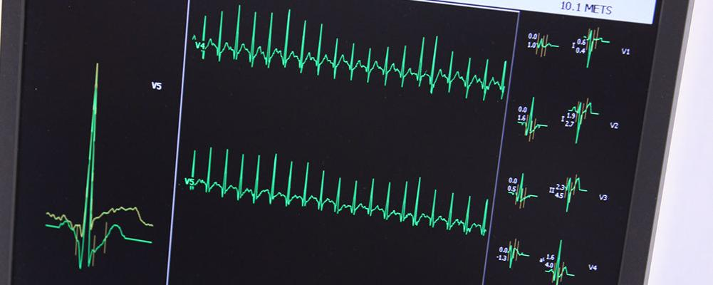 Herzrasen und Herzstolpern
